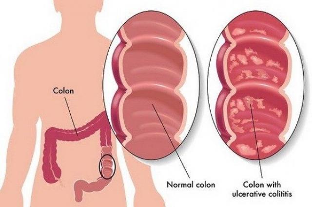Ishrana i dijeta za Ulcerozni kolitis - koja hrana se jede kod kolitisa