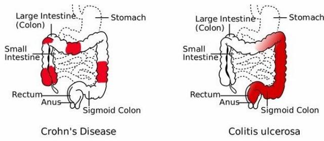 Ulcerozni kolitis i ishrana - kako se hraniti kod Ulceroznog kolitisa