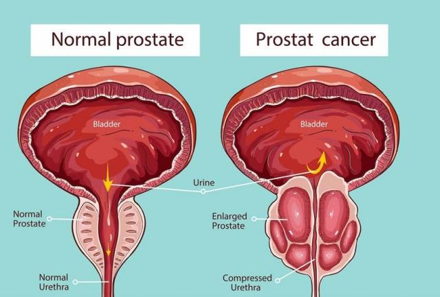Veličina prostate i godine starosti - uvećana prostata i normalne mere za prostatu