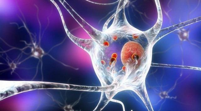 Šta je sve potrebno za lečenje Parkinsonove bolesti?
