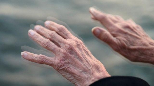 Da li je moguće prirodno lečenje Parkinsonove bolesti?
