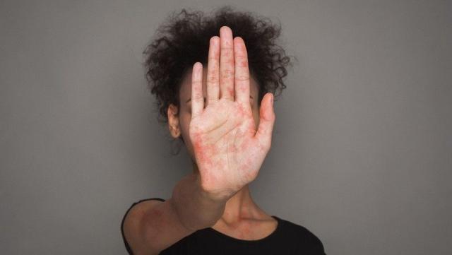 Bolest lupus lečenje i simptomi, kako da upravljate simptomima?