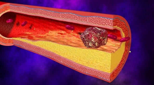 Kako da smanjite holesterolski plak u arterijama?