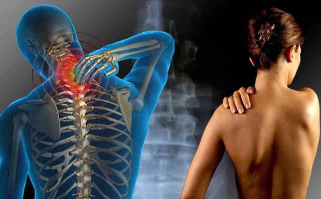 Fibromijalgija simptomi - kako da prepoznate simptome ovog sindroma?