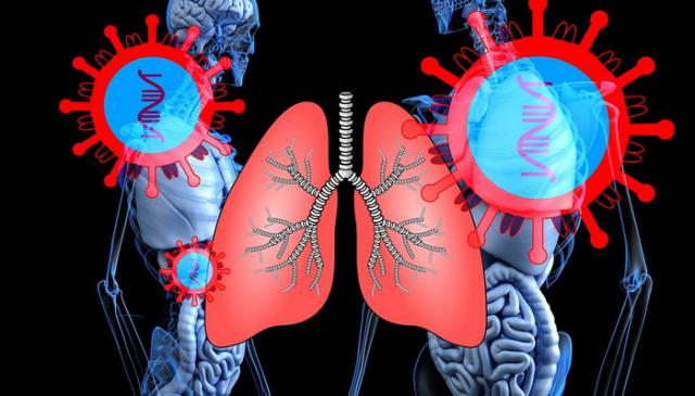 Upala pluća ishrana koja može da Vam pomogne da se rešite tegoba