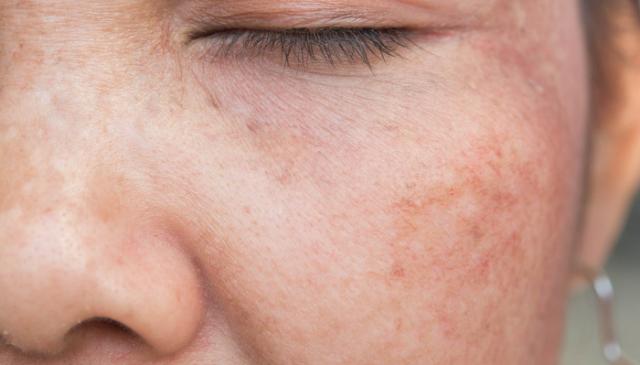 Bele fleke na koži - zašto se javljaju i kako da nestanu?