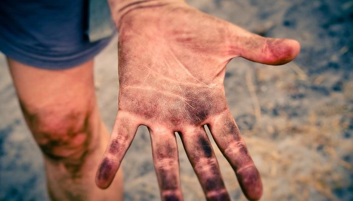 Dijagnostika preko dlana, kako da vidite potencijalne bolesti preko dlana